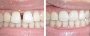 牙列稀疏的矫正办法