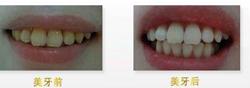 什么是色素牙?色素牙怎么办