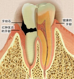 牙周病成因和预防