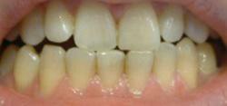 黄牙是怎么回事?牙齿为何变黄呢?