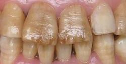 黑牙是什么?有黑牙怎么办?