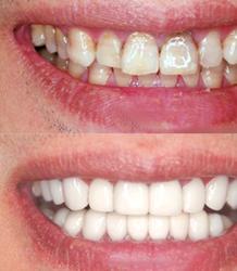 四环素牙该如何美白?