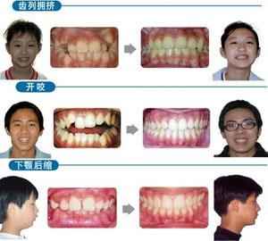 儿童牙齿矫正有没有副作用?