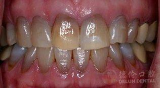 什么是四环素牙