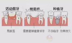 种牙到底怎么种?与《G4出动》一同见证